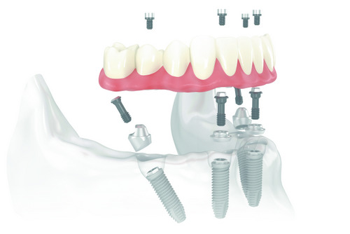 Full arch replacements by New Day Dental Care