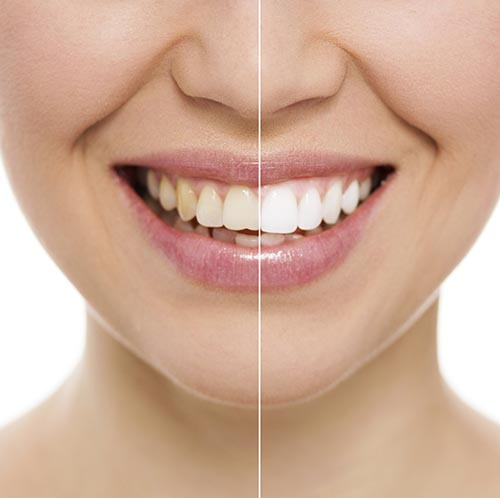 Teeth Whitening at New Day Dental Care